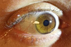 A szemem!